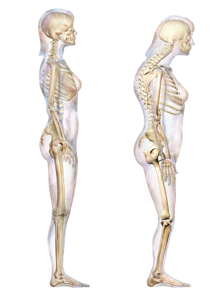 Picture of a woman with kyphosis, also known as hunchback